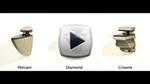 Diamond, Pelicani, and Crowne brackets